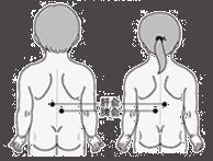 kinder acupunctuur